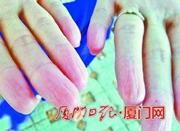 """母子疑患罕见""""无指纹病"""" 十指均无指纹"""
