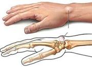 手筋膜炎是什么病? 医生称常做重复动作易中招
